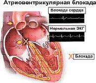Как лечить блокаду сердца народные средства