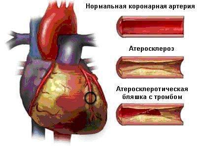 Лекарства от холестерина в крови цены